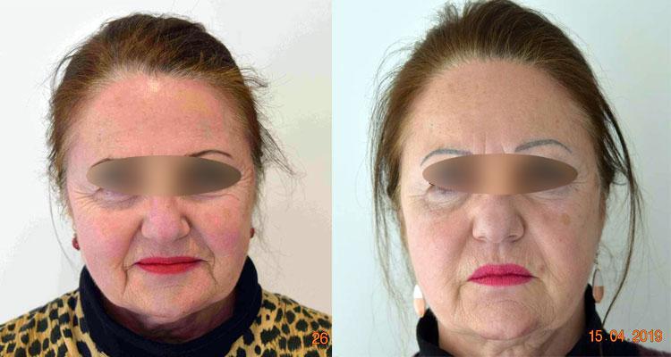 Rajeunissement du visage à Nantes - Dr Charonneau
