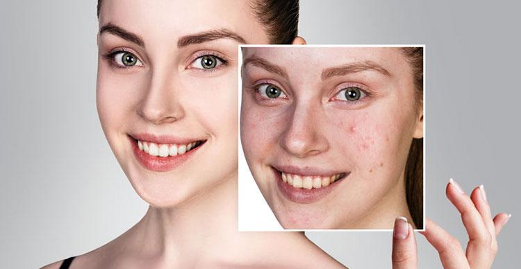 Traitement de l'acné à Nantes - Dr Chardonenau